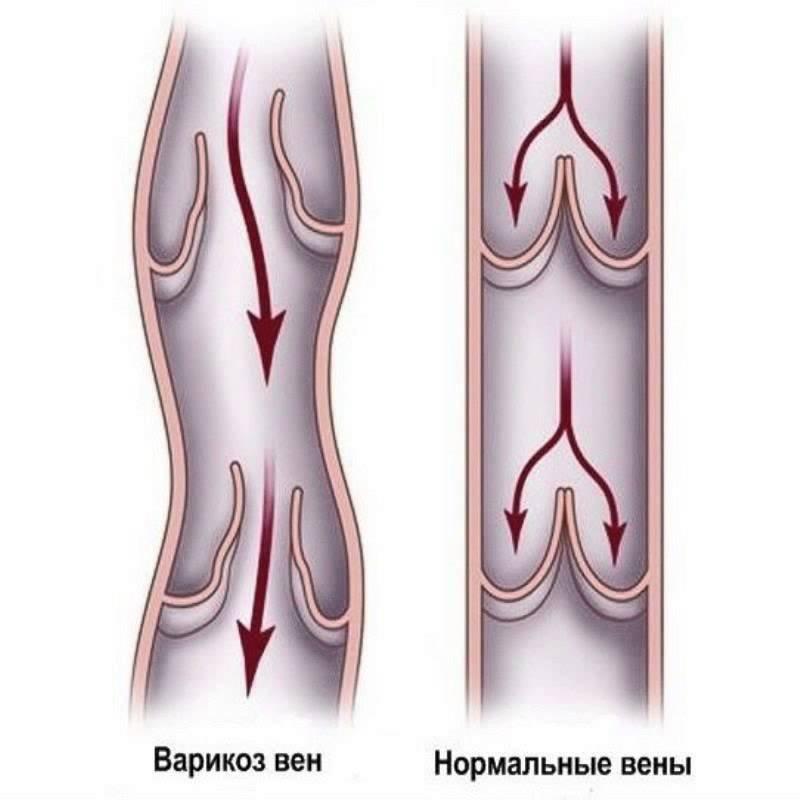 Варикозное расширение вен на ногах
